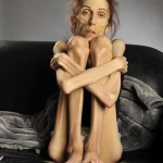 Woman Dying From Anorexia Asks The World For Help